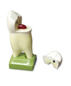 Molar superior 3 arrels